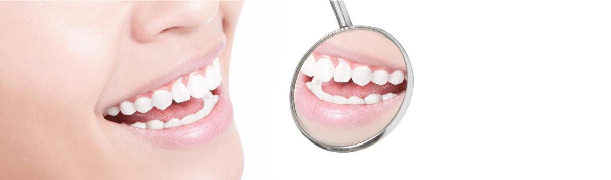 stomatolog piaseczno, stomatolog warszawa, dobry stomatolog piaseczno, dobry stomatolog warszawa