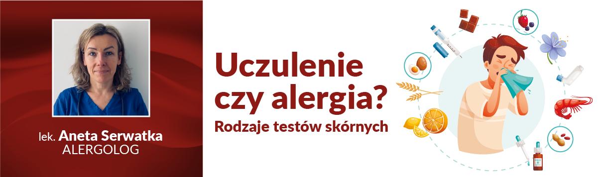 Testy skórne – rodzaje i przebieg badań – alergolog z CMP Łomianki